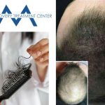 Hair Recovery Treatment Center Los Angeles